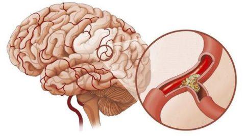 Причина таких симптомов – закупорка артерии холестериновой бляшкой