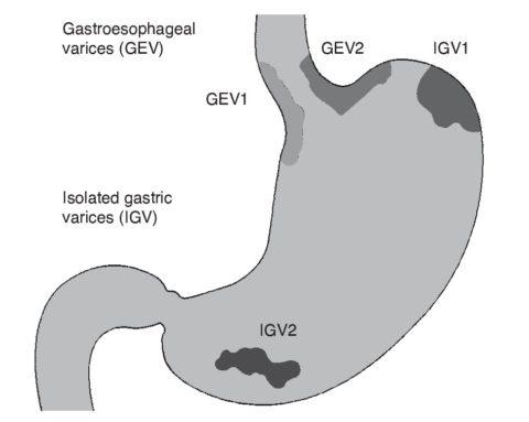 Пример локализаций варикозно расширенных вен в области желудка.
