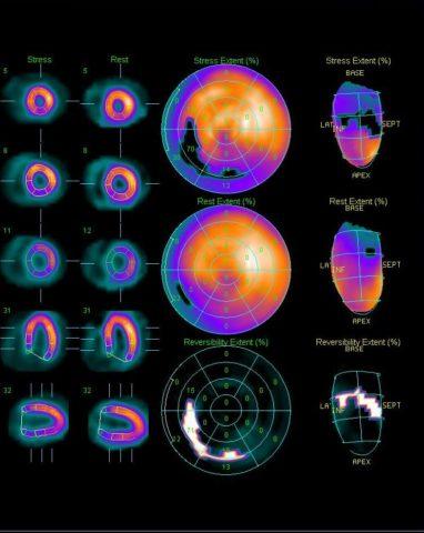 Пример радионуклидного метода исследования сердца.