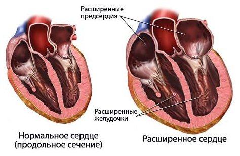 Признак сердечной недостаточности