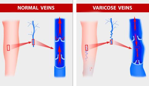 Рефлюкс венозной крови при варикозе