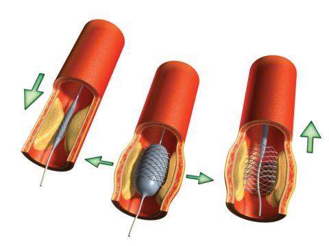 Схематическое изображение баллонной ангиопластики.