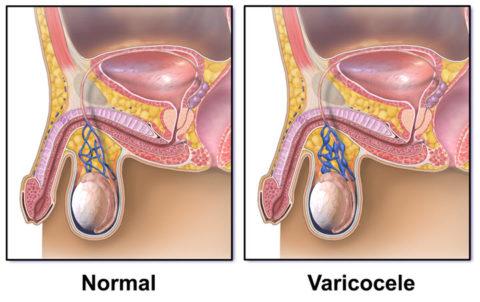 Схематическое изображение здоровых и больных вен мошонки