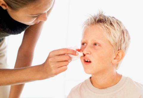 Слабость слизистых как причина носовых кровотечений.