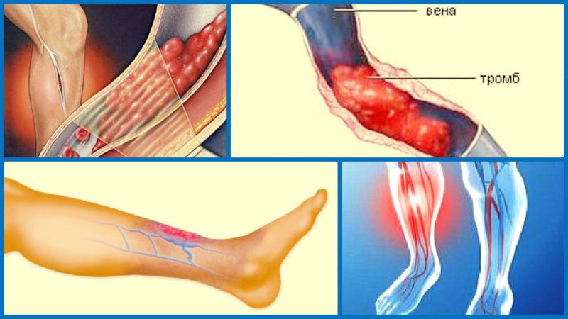 самым низким может ли при варикозе ног оторваться тром лишь поздно