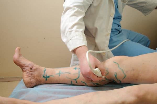 Ультразвуковая допплерография сосудов нижних конечностей