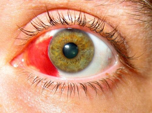 Сколько времени после операции глаз красный
