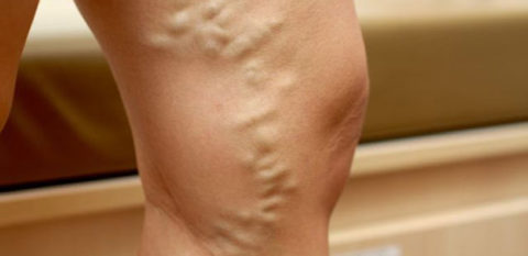 Варикоз ноги