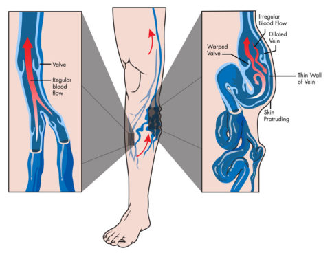 Варикозная болезнь вен развивается из-за несостоятельности клапанов и коммуникативных вен.