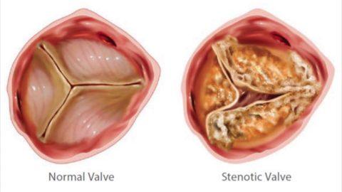 Внешний вид измененного стенозом аортального клапана.