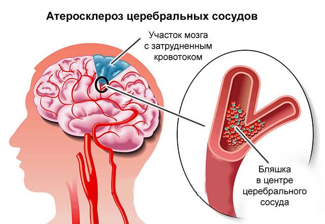 Инсульт вследствие атеросклероза церебральных сосудов