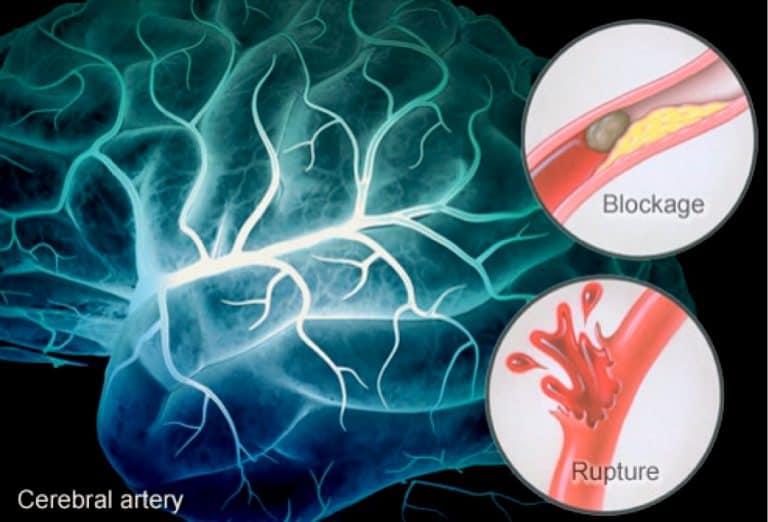 Атеросклероз артерий мозга влечет за собой серьезные последствия