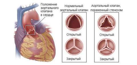 Аортальный клапан в норме и при кальцинозе