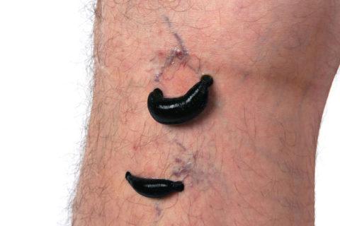 Для лечения применяется гирудотерапия
