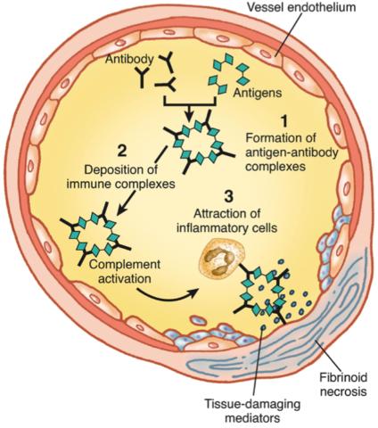 Механизм воздействия иммунных комплексов при развитии васкулитов.