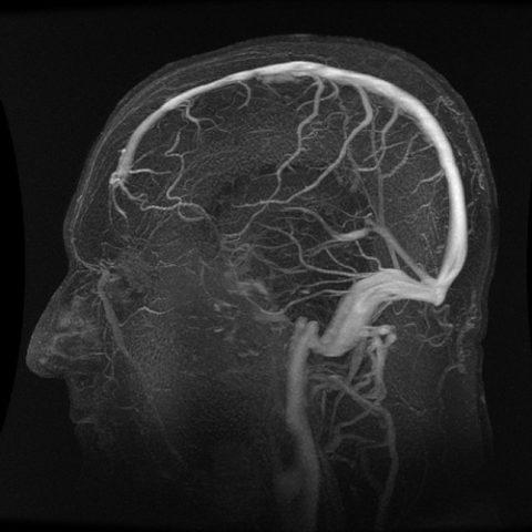 МРТ сосудов головы и шейного отдела позвоночника
