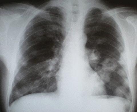На рентгенограмме представлены множественные гранулематозные очаги в легких.