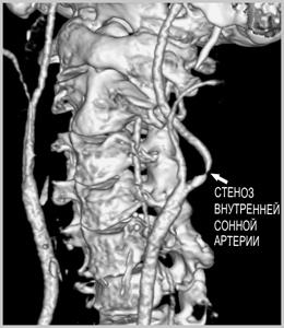Патология сонной артерии, обнаруженная на МРТ (реконструкция)