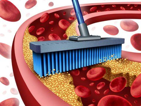 Под чисткой сосудов подразумевается комплекс мер по удалению из них холестериновых бляшек