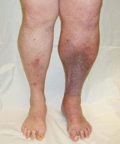 Посттромбофлебитический синдром как осложнение заболевания сосудов