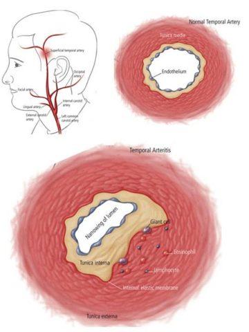 Представлен срез пораженной височной артерии при гигантоклеточном васкулите.