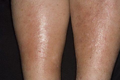 Пример варикозного дерматита
