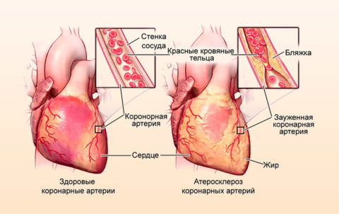 Развитие хронической ишемической болезни сердца из-за атеросклероза