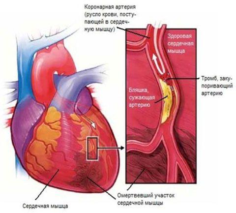 Сосуды сердца при атеросклерозе и кальцинозе