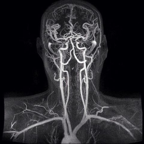 Сосуды шеи на МРТ