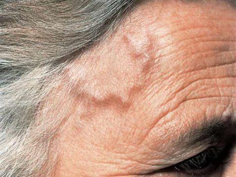 Специфическое изменение височной артерии при заболевании Хортона.