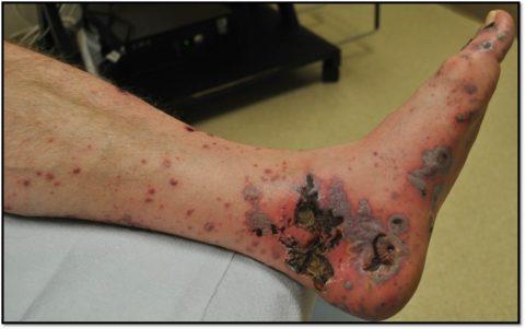 Вид ноги при узловом полиартрите.