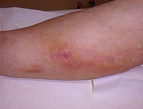 Внешний вид ноги при поверхностном тромбофлебите.