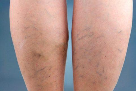 Фото: Сосудистые звездочки на обеих ногах