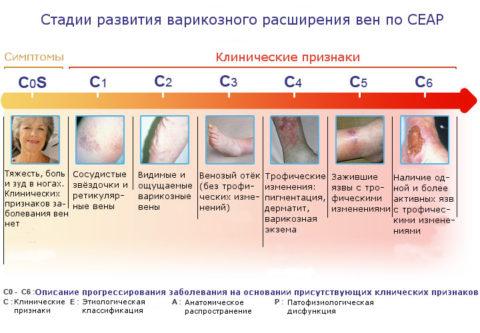 Клинические симптомы заболеваний вен