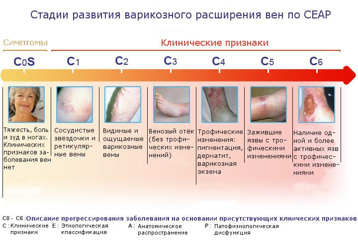 Классификация варикозной болезни по СЕАР: шифровки