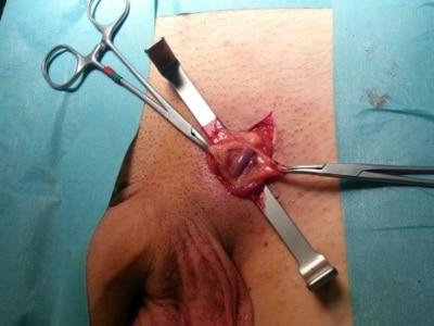 Мармара (варикоцелэктомия)