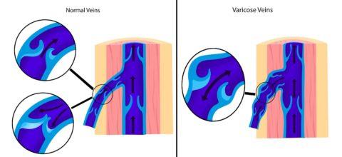 Сохранение рефлюкса после удаления варикоцеле может стать причиной рецидива