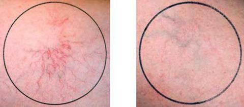 Состояние кожных покровов сразу после медикаментозной терапии