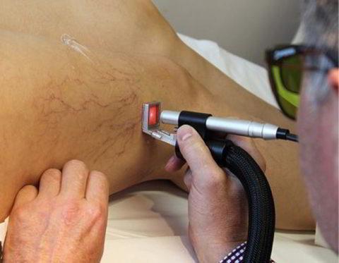 Фото: проведение операции лазерного удаления вен