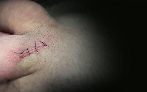 Наложенные швы после операции Мармара