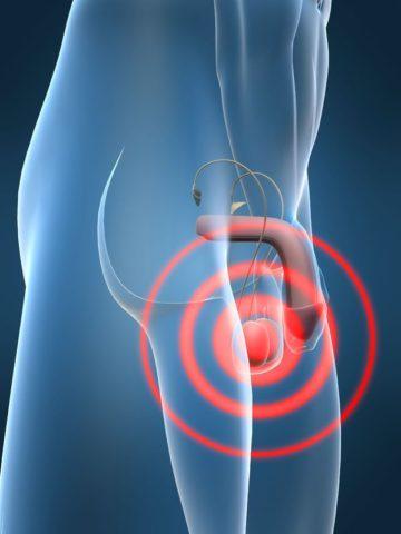 Сильная усиливающаяся боль в яичке после лечения признак осложнений