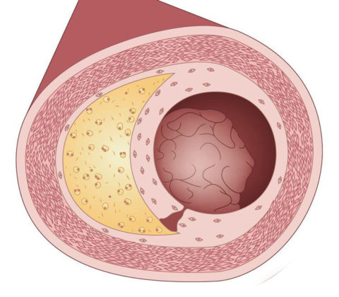Атеросклеротические бляшки