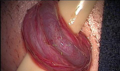 Извлеченная яичковая вена во время удаления варикоцеле