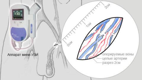 Механизм проведения операции Мармара