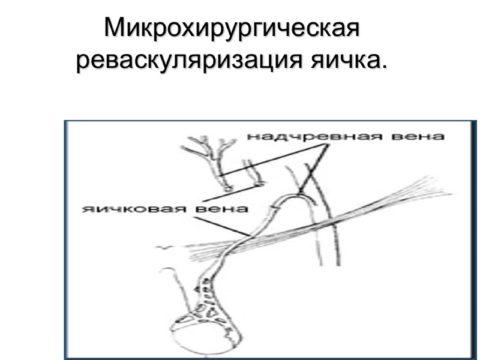 Микрохирургическая реваскуляризация яичка