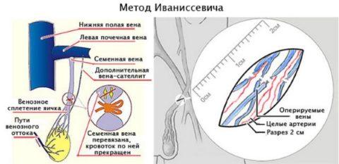 Операция по удалению варикоцеле по Иваниссевичу