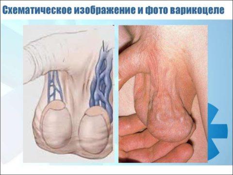 Варикозное воспаление вен семенного канатика – схема и фото
