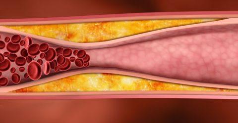 Холестериновая бляшка препятствует естественной циркуляции крови