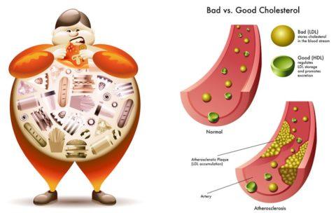 Повышенное содержание плохого холестерина первопричина развития атеросклероза