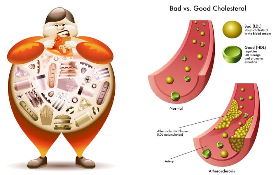cholesterol essays Essay on high cholesterol fatty and deathly cholesterol, a waxy substance produced by the liver and found in certain foods, is needed to make vitamin d and some hormones, build cell walls.